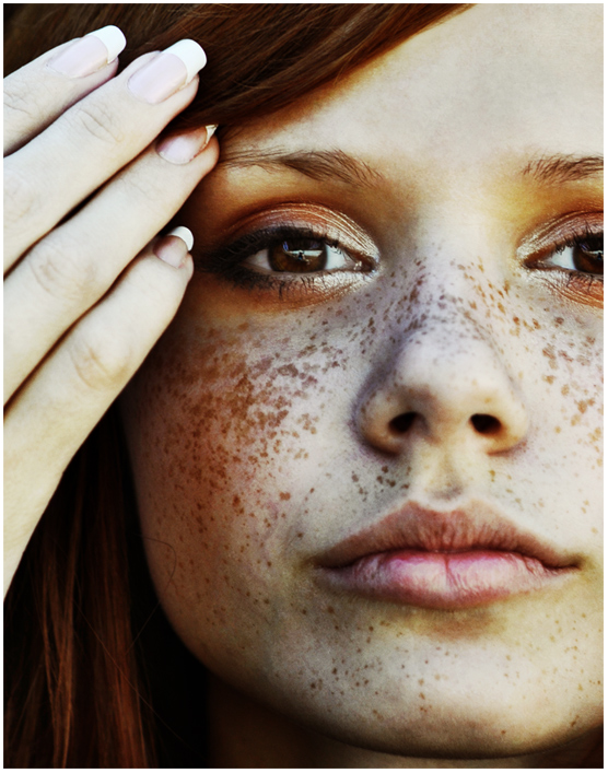 Spring came! | fingers, redhead, freckles