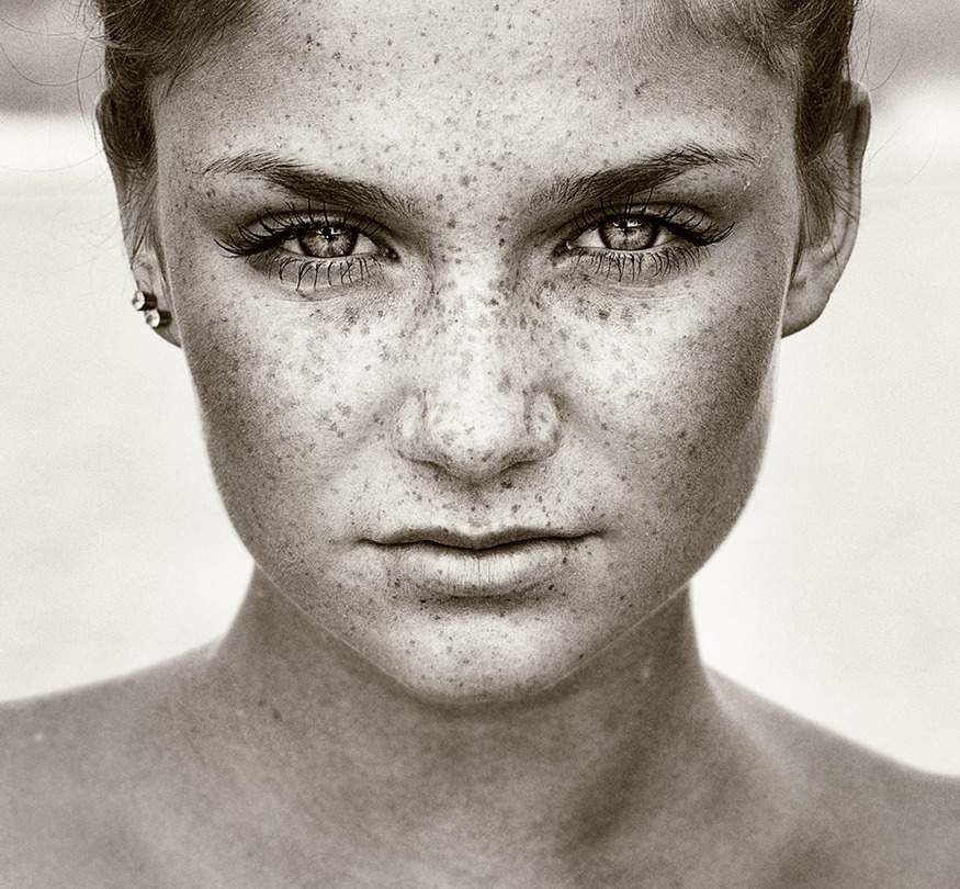 Power | freckles, close-up, black and white